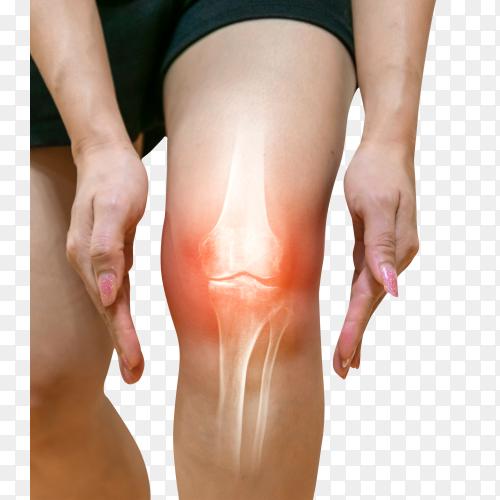 Human leg osteoarthritis inflammation of bone joints Premium image PNG