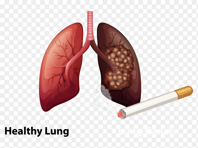 Healthy lung and cancer lung injured vector PNG