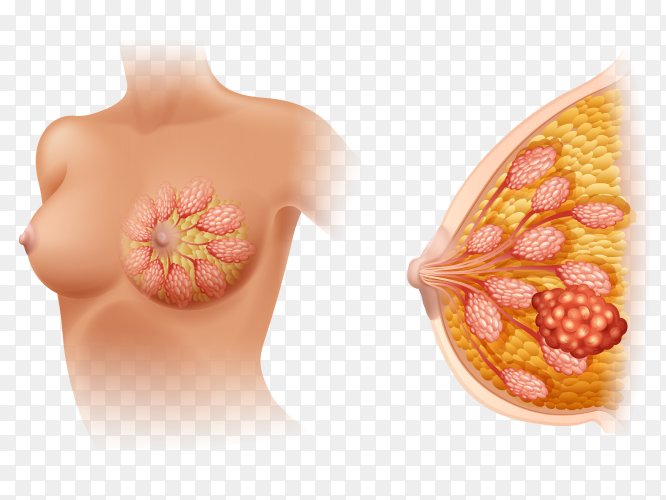 Breast cancer on transparent PNG