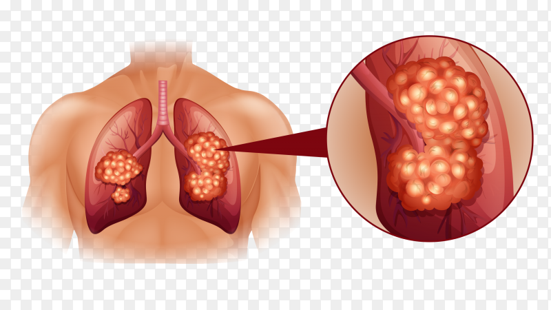 Healthy lung and cancer lung injured on transparent background PNG