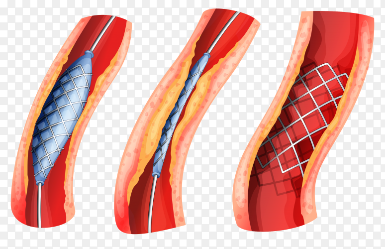Stent used to open blocked artery Premium Vector PNG