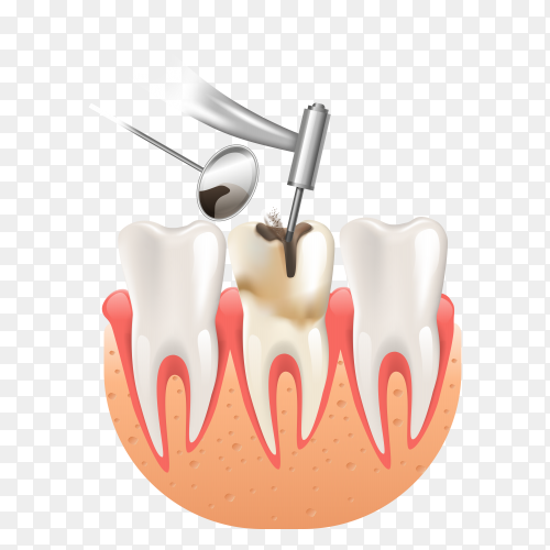 Clean caries by tooth dental drill on transparent background PNG