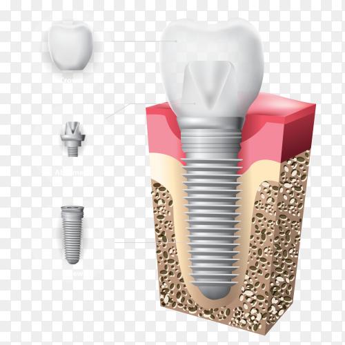 Human teeth dental implant illustration on transparent background PNG