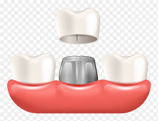 Tooth crown realistic dental poster on transparent background PNG