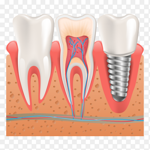 Realistic healthy teeth structure dental implant on transparent background PNG