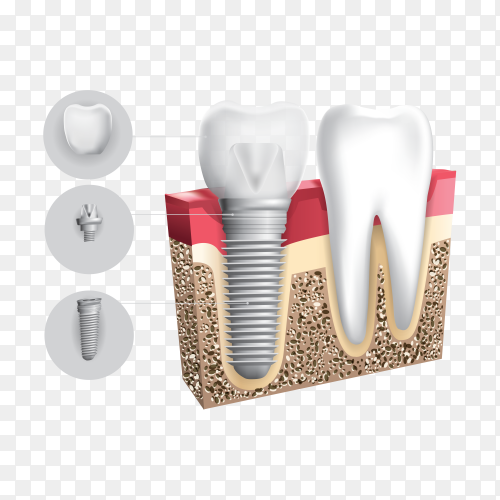 Schematic info graphics of human teeth and dental implant on transparent background PNG