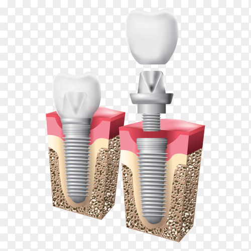 Schematic info graphics of human teeth and dental implant premium vector PNG