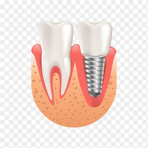 Teeth procedure of implant veneer crown restoration on transparent background PNG