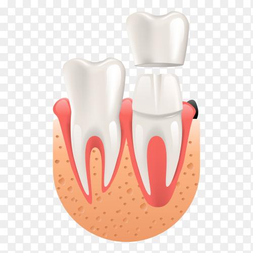 Teeth procedure of implant veneer crown restoration premium vector PNG