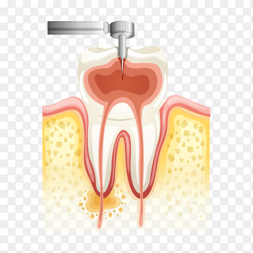 Dental root canal on transparent background PNG