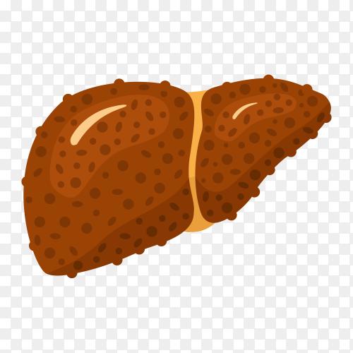 Damage liver (Cirrhosis) illustration on transparent background PNG