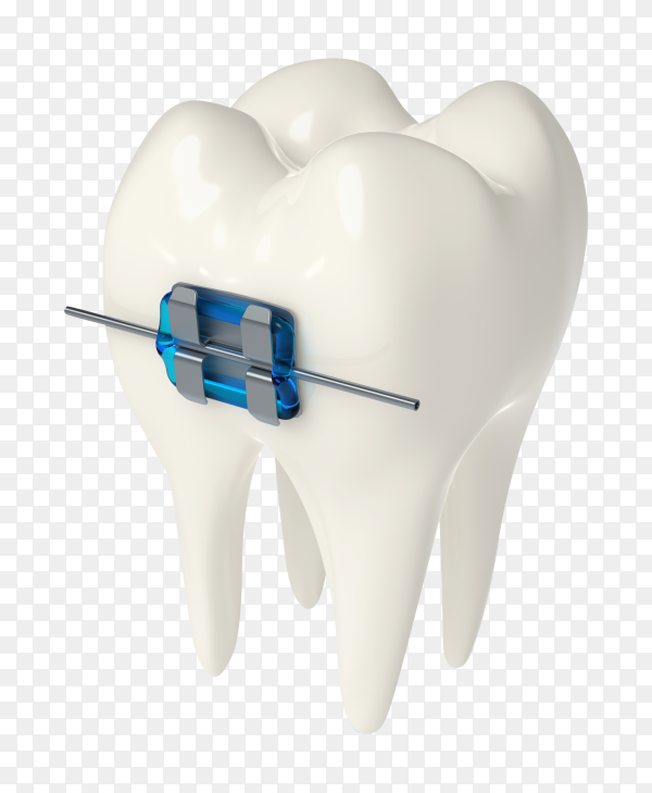 3D render tooth with ceramic metal braces gums on transparent background PNG
