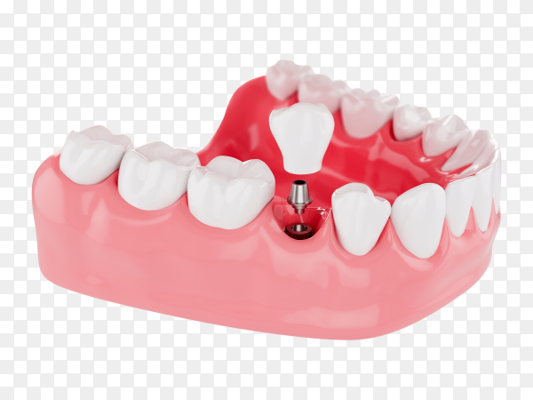 Close up process implants teeth health care on transparent background PNG