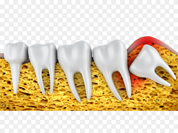 Teeth falling out isolated on transparent backgound PNG