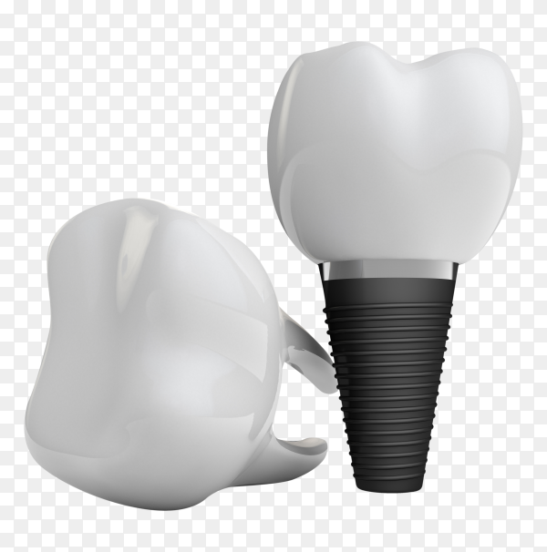 Tooth implant on transparent background PNG