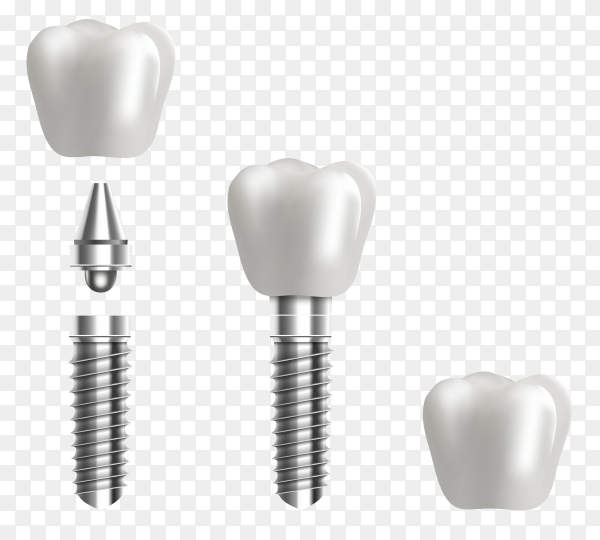 Human teeth and dentist implant in cartoon flat style on transparent background PNG