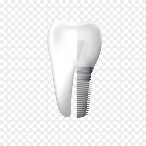 Dental Implant and Human teeth isolated on transparent background PNG