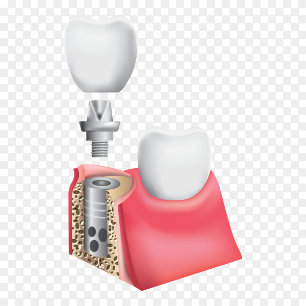 Dental Implant and Human teeth on transparent background PNG