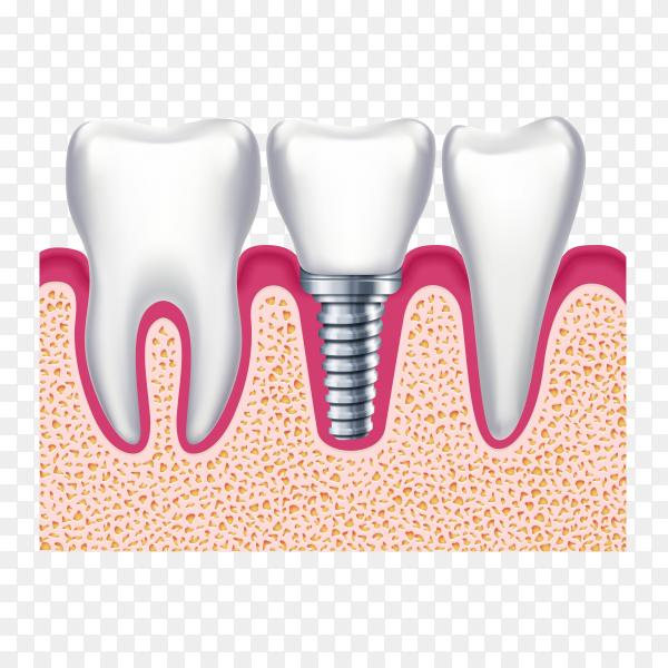 Dental Implant illustration on transparent background PNG