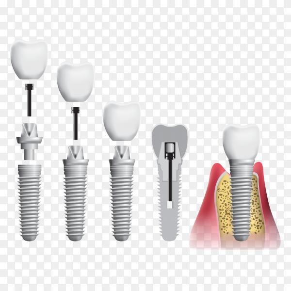 Dental Implant on transparent background PNG
