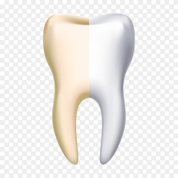 Dental veneer, teeth whitening concept. stomatology and healthcare on transparent background PNG