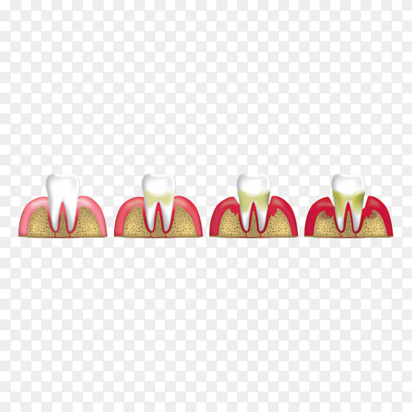 Human teeth stages of gum disease illustration on transparent background PNG