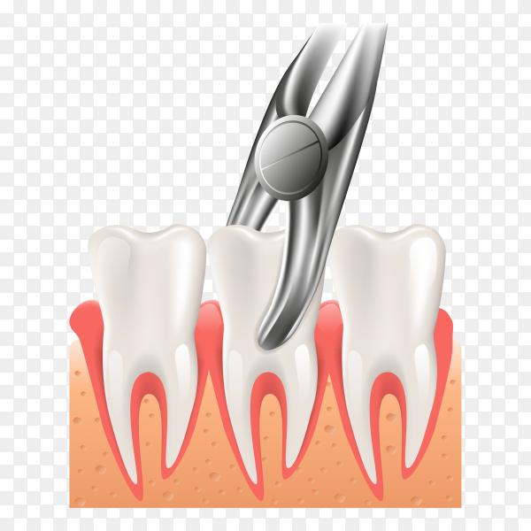 Realistic 3d dental surgery illustration on transparent background PNG.png