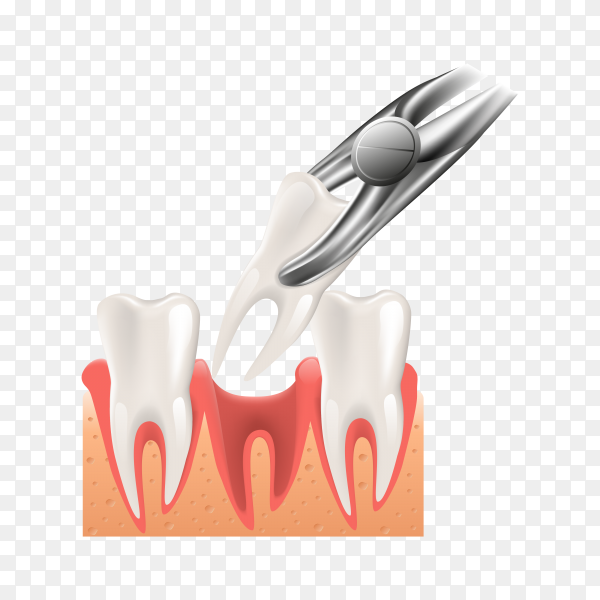 Realistic 3d dental surgery illustration premium vector PNG.png