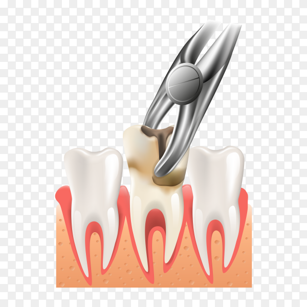 Realistic illustration dental surgery in 3d on transparent background PNG.png