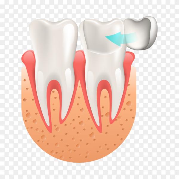 Teeth procedure of implant veneer crown restoration on transparent PNG