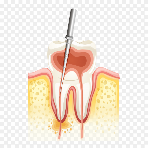 Root canal process on transparent background PNG